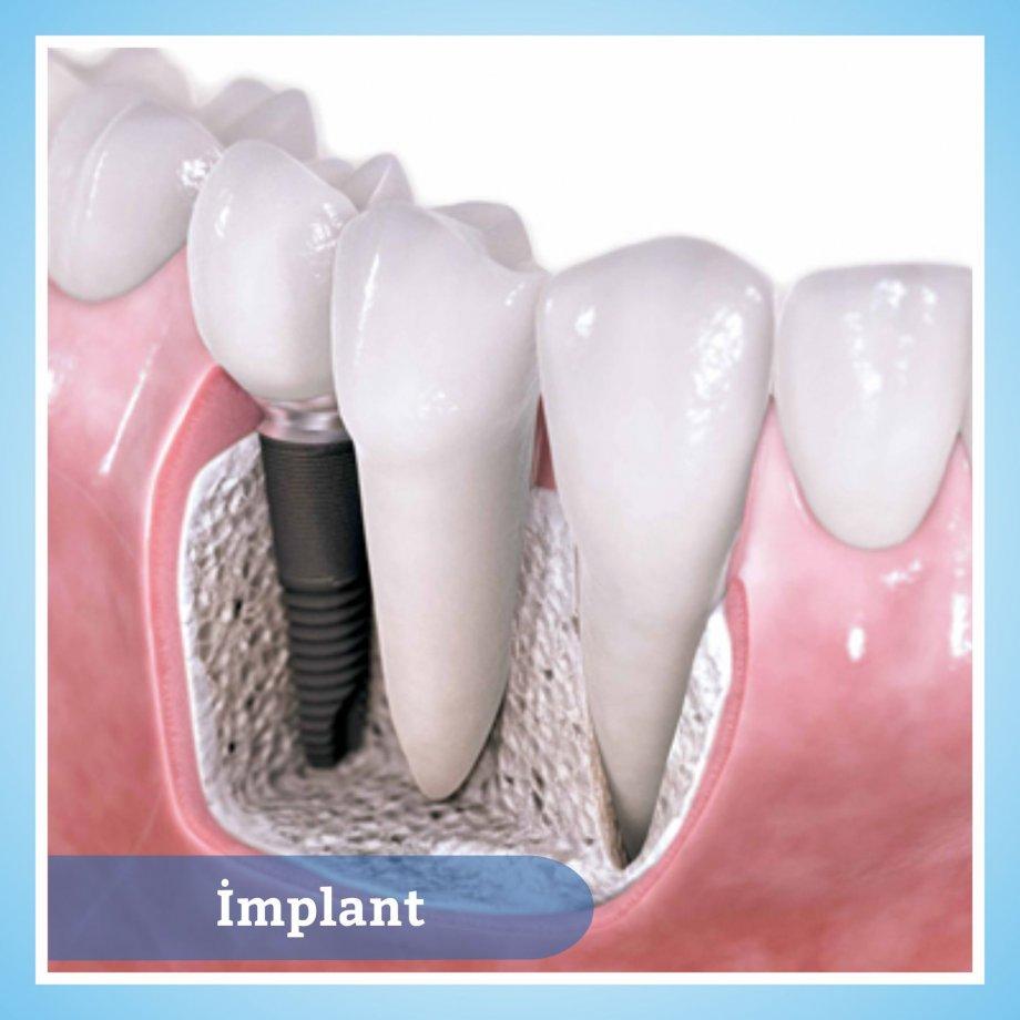 Diş ve Çene Tedavileri