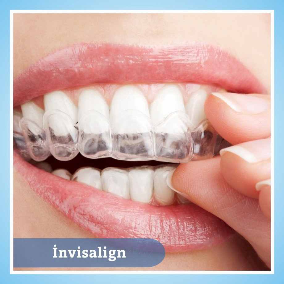 Ortodontik Tedaviler
